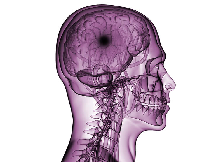 Introduction To Brain Injury Class Pg Big